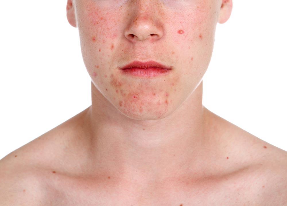 acne, cbd benefits, cbd for skin problems, compare cbd