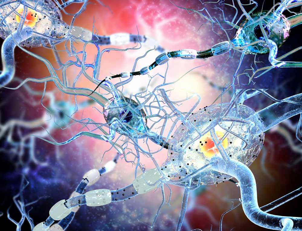 dravet syndrome, cbd research, cbd benefits